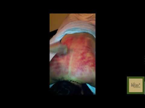 Massage Monday 5-14-12: What is Coining (a.k.a. Scraping or Gua Sha)?