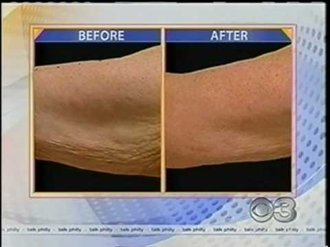 Thermage Tightens Loose Arm Skin