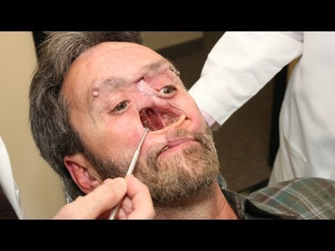 The Man With A Hole In His Face: Body Bizarre Episode 3