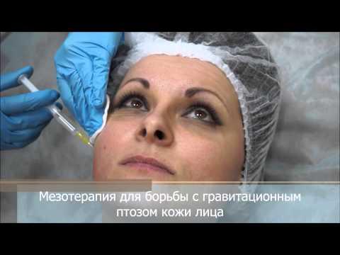 Мезотерапия лица для борьбы с морщинами