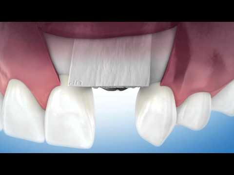 Stem Cell Augmented Microsurgery - Bone Formation Around Dental Implants