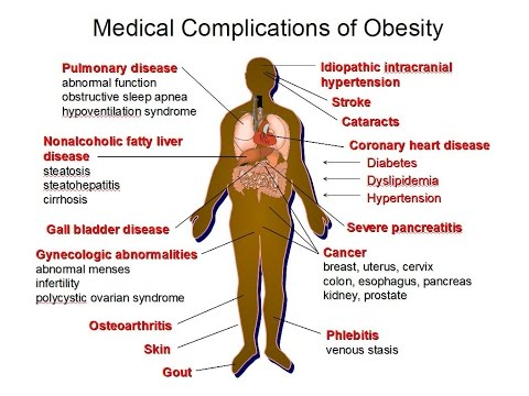Nutrition Related Diseases/Death Rates & Obesity