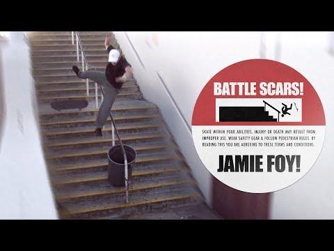 Jamie Foy's Battle Scars