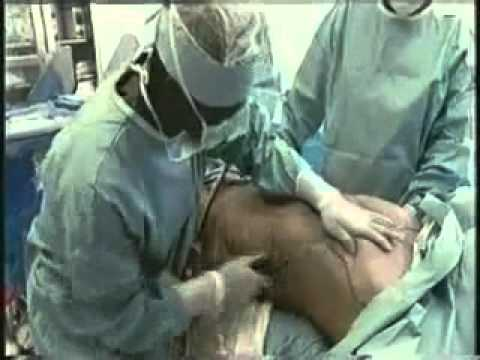 male to female vaginoplasty