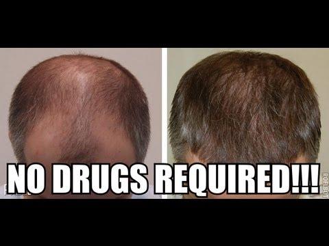 Reverse Hair Loss Naturally