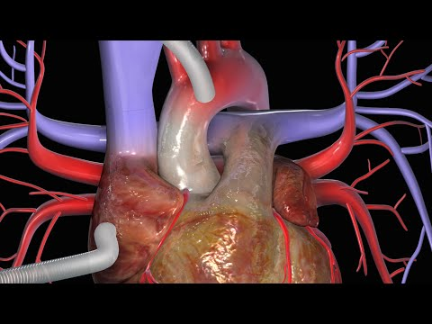 Heart Bypass Surgery (CABG)
