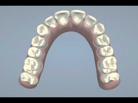 Invisalign ClinCheck Animation - Rochana K