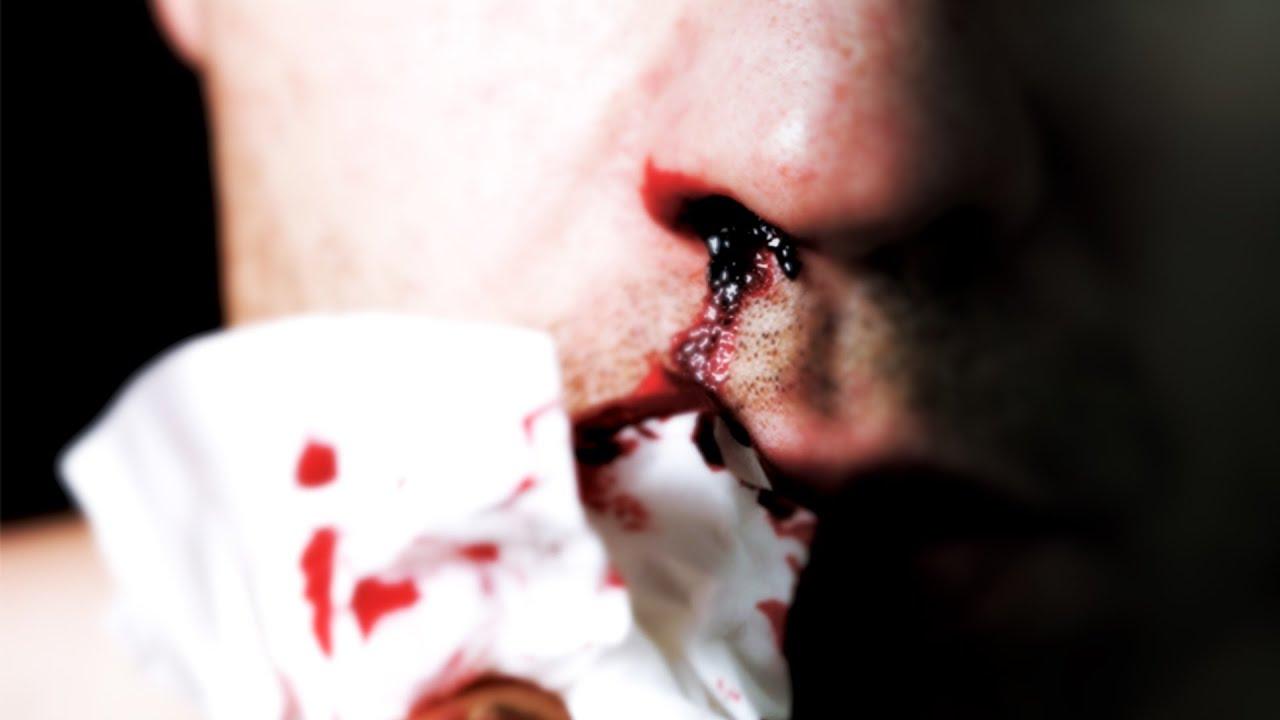 Что делать если пошла кровь из