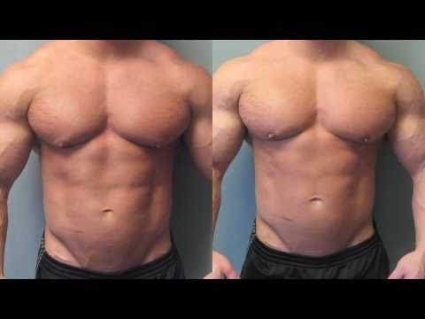 Bodybuilders with Gynecomastia - Operated on by Dr. Mordcai Blau
