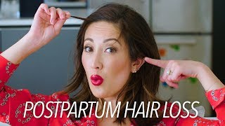 Postpartum Hair Loss & Regrowth: My Tips & Must-Haves! | Susan Yara