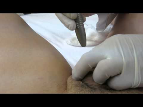 Pearly Penile Papule Laser Treatment-Valley Aesthetics and Laser-Huntington Beac