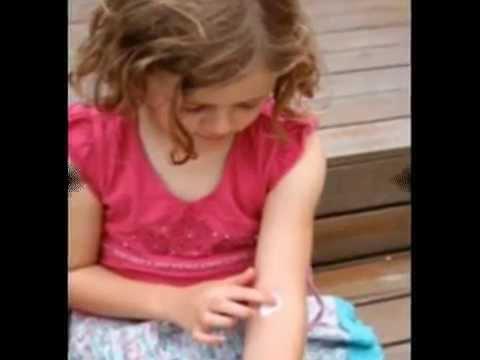 Eczema In Children - Treatment Of Eczema In Children
