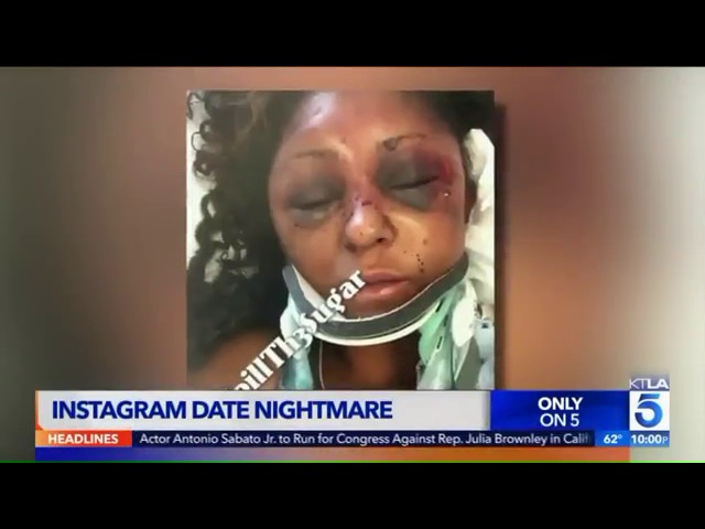 Woman Shares Her Story Of Getting Beat Up During A Date With A Man She Met On Instagram!