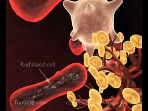 Periodontal disease and Systemic Health Issues.wmv