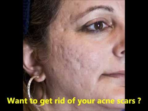 Acne scars : How to get rid of acne scars : need help ?