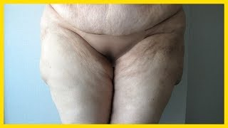 Vaser Liposuction New Technique of 2017
