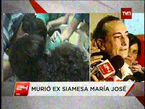 Muere una de las siamesas separadas en el Hospital Calvo Mackenna