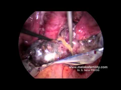 Laparoscopic cystectomy for a large Dermoid cyst
