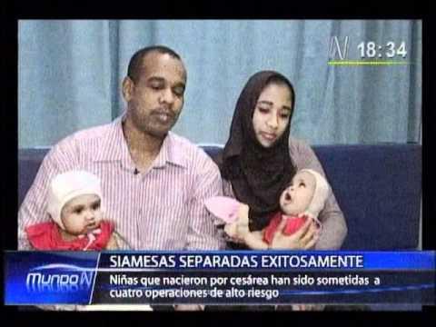 Operación exitosa: Médicos lograron separar a siamesas que nacieron unidas por la cabeza