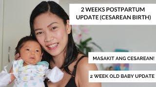2 weeks post partum update   cesarean birth  Taglish