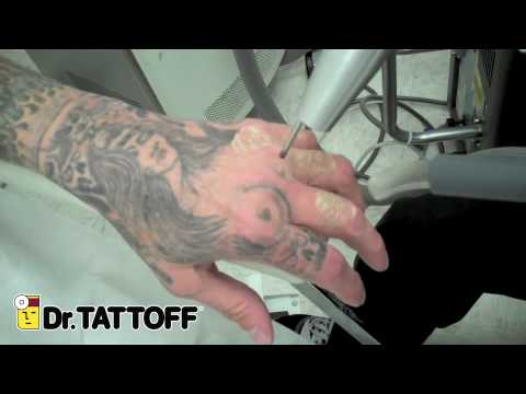 Tattoo Removal - Skull Tattoos on Fingers