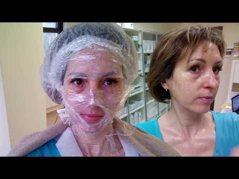 69  ЖЕЛТЫЙ ПИЛИНГ - процедура и шелушение день за днем   Golden Yellow Peel Dermatime