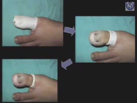 Clinical Procedures in Dermatology-1