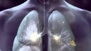 مخاطر سوء استخدام أجهزة استنشاق الدواء