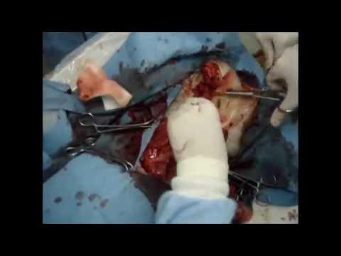 mastectomia in una cagna di 12 anni