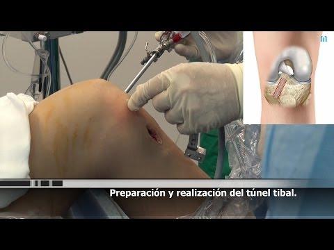 Operación Ligamento Cruzado Anterior. Artroscopia Rodilla en Valencia (Parte 2 de 2).