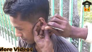 ►1st Time on Street Ear Cleaning II This Guy Happy at Small Price