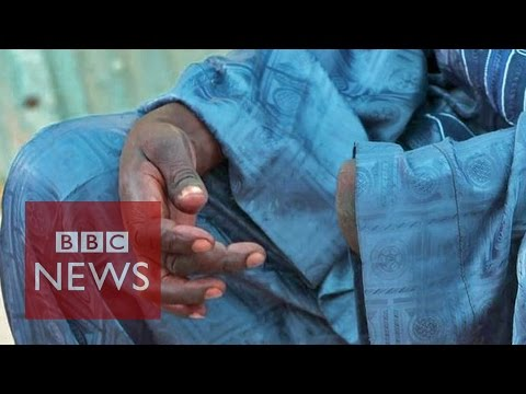'Boko Haram cut off my hand'