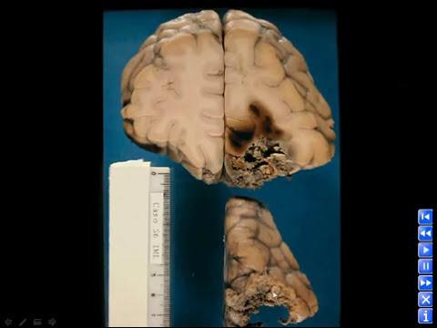 Traumatismos Cranioencefálicos (parte 01 de 03)