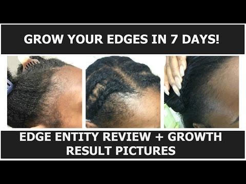 How to Grow Your Edges in 7 days   Edge Entity Review   Before & After