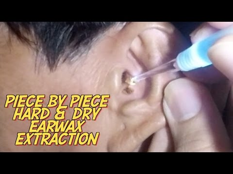 Piece by Piece Hard & Dry Earwax Extraction