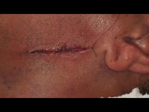 BUCOMAXILOFACIAL - Fratura de mandíbula
