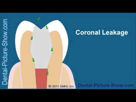 Root canal treatment complications: Coronal Leakage.