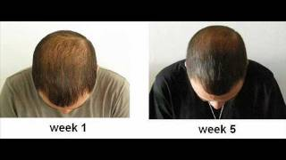 REAL Hairdrenalin results in 5 weeks - POTION HD FOR MEN