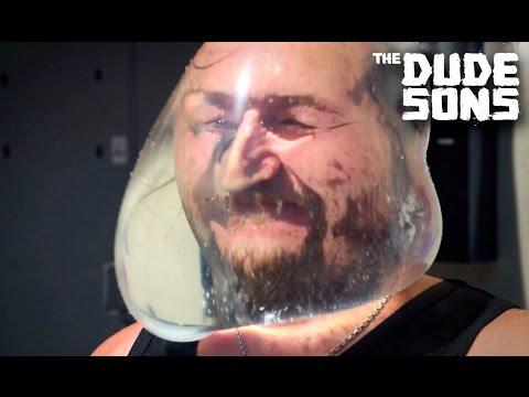 The Dudesons Jarppi Lost Thumb