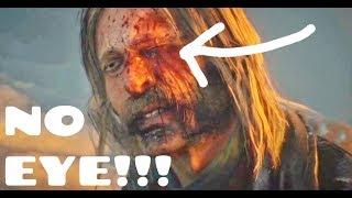 Red Dead Redemption 2 Micah loses eye ending