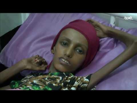 فيديو: هكذا أصبحت فتاة تهامة اليمنية «سعيدة بغيلي» بعد تعافيها من المجاعة وسوء التعذية!