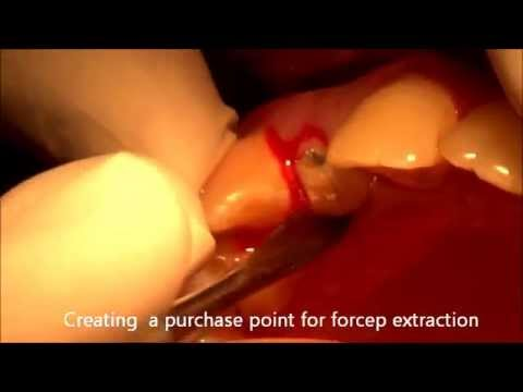Removal of root canal treated fractured tooth in 1 minute