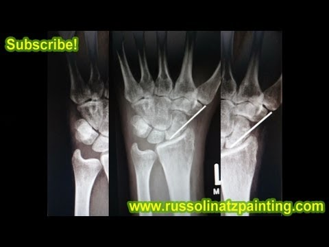 Scaphoid Nonunion Proximal pole fracture X-ray -Bone Graft with pin fixation / long arm plaster cast