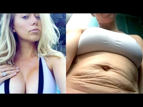 Kendra Wilkinson's CONTROVERSIAL Stretch Mark Photo | What's Trending Now