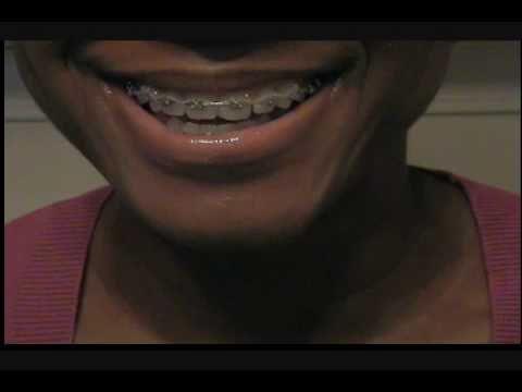 damon braces update 10.4.2010