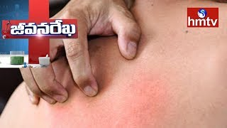 Ayurveda Treatment For Psoriasis, Vitiligo and Other Skin Diseases | Star Ayurveda | hmtv News