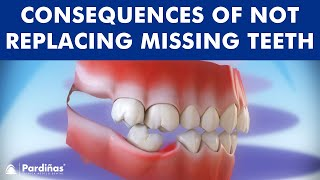 Consequences of not replacing missing teeth ©