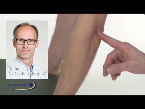 Untersuchung des Ellenbogens mit dem Push-up Test, PD. Dr. Bastian Marquaß, MVZ Gelenk Klinik