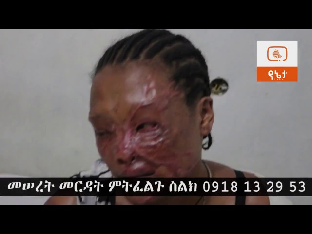 Ethiopia: Meseret, victim of Acid attack