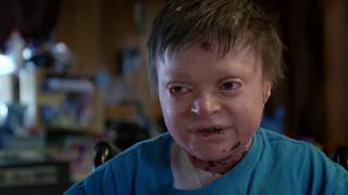 Epidermolysis Bullosa (EB) sufferer Jonathan Gionfriddo | The Boys With No Skin | Channel 5